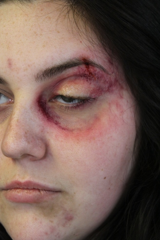 Domestic Abuse Victim - Old bruises on face and Gelatine eye bag